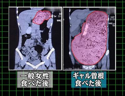 ギャル曽根の胃袋の画像